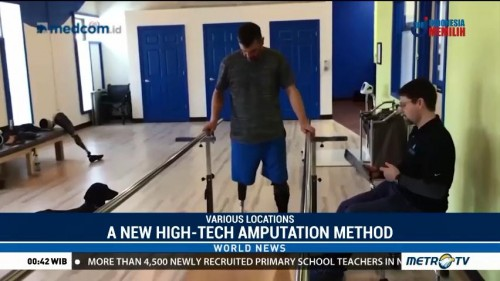 Boston Marathon Bombing Inspires High-Tech Amputations