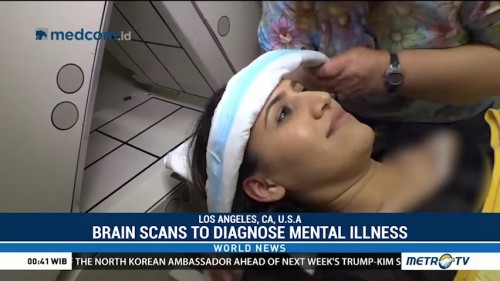 Doctor Uses Brain Scans in Diagnose of Mental Illness