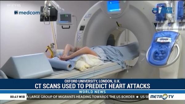 Using CT Scans to Predict Heart Attacks