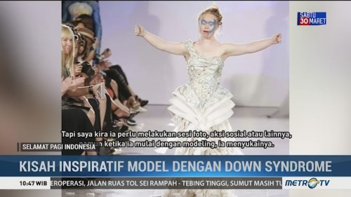 Kisah Inspiratif Model dengan Down Syndrome