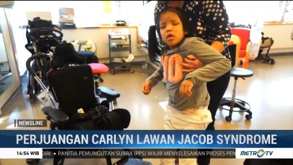 Perjuangan Carlyn Lawan Jacob Syndrome